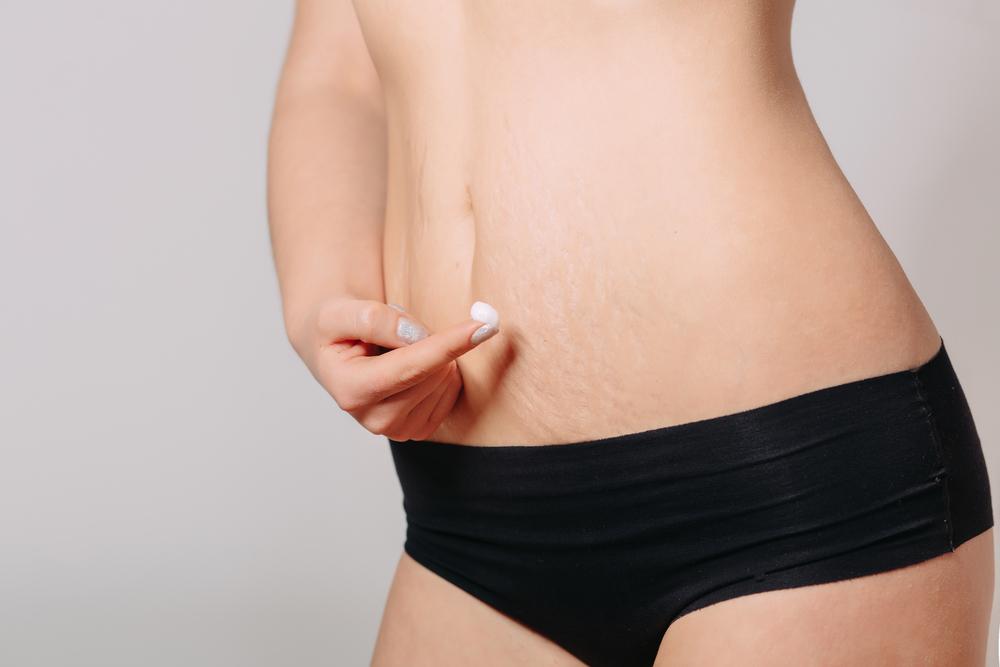Розтяжки на тілі: причини появи і способи усунення